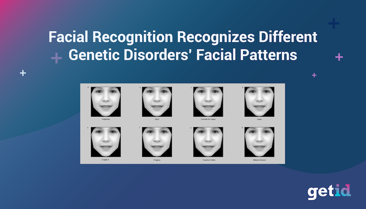 Facial Recognition recognizes different genetic disorders' facial patterns